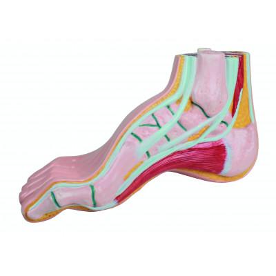 Modèle de pied creux