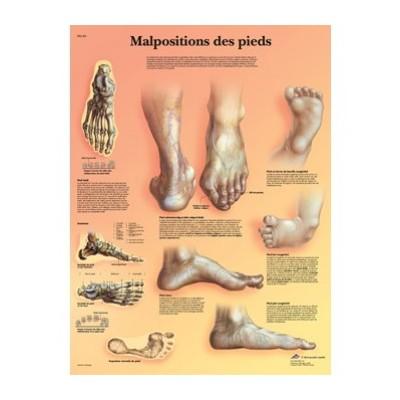 Planche anatomique - Malpositions des pieds - Anatomie et pathologie