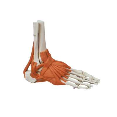 Squelette du pied avec ligaments