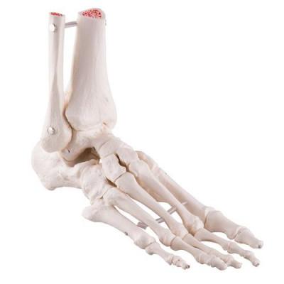Squelette du pied avec moignon tibia et fibula (péroné), montage élastique, côté