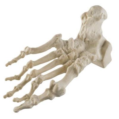 Mini-articulation de la hanche avec coupe transversale, sur socle - Anatomie et pathologie