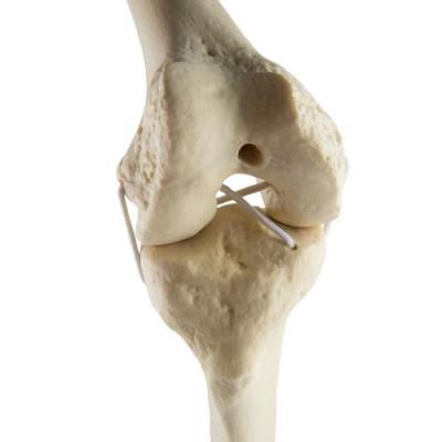 Genou droit - Anatomie et pathologie