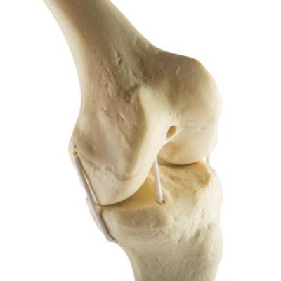 Genou gauche -  Anatomie et pathologie