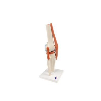 Modèle fonctionnel de luxe de l'articulation du genou - Anatomie et pathologie
