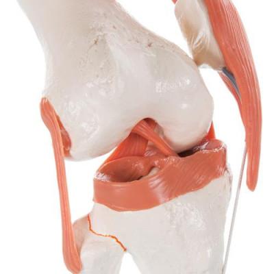 Articulation du genou - Modèle fonctionnel - Anatomie et pathologie