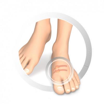 Protection pour orteils - Coussin creusé en latex souple - Protège contre la friction - 9 pièces - Deux épaisseurs disponibles